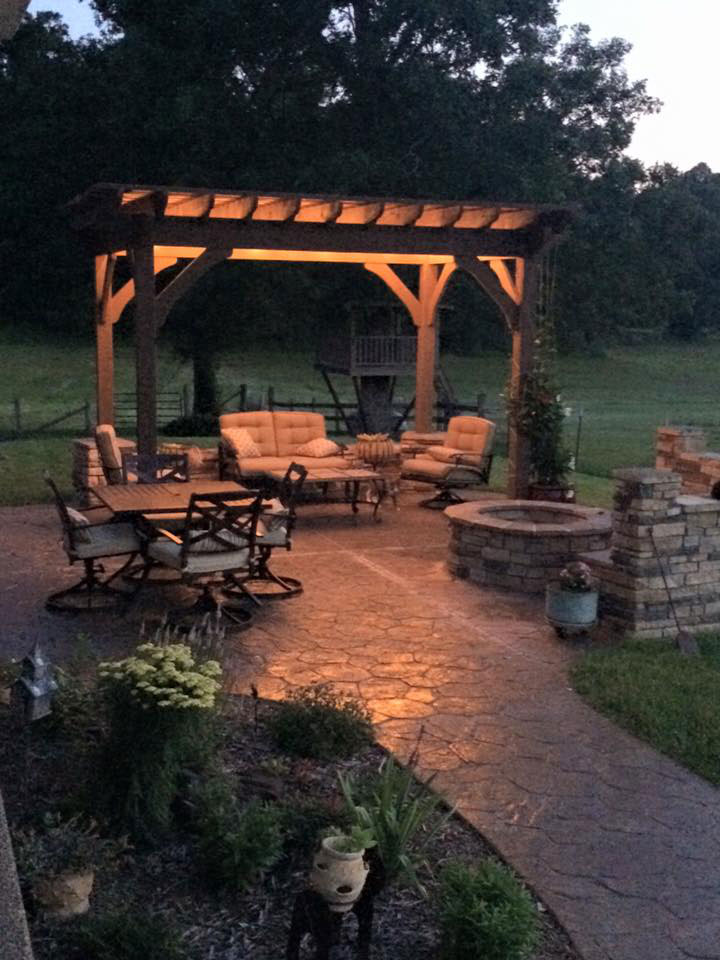 with lights on pergola